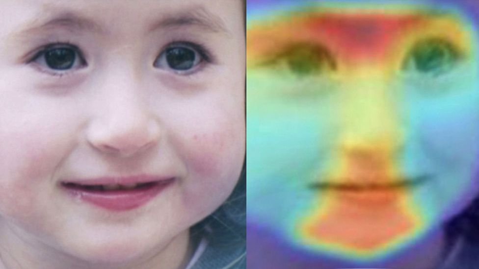 Our facial features can betray subtle information about certain rare genetic disorders, which machine learning is helping doctors to identify (Credit: Face2gene/FDNA)