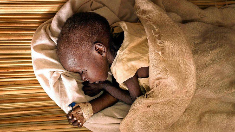 According to one theory, kifafa may arise from a childhood infection (Credit: Getty Images)