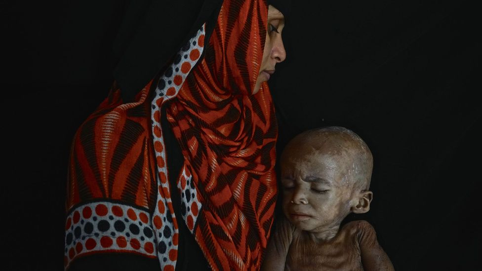 While images of malnourished Ethiopian children featured heavily in the news during the 1980s, victims of famine in Yemen have largely been ignored (Credit: Getty Images)