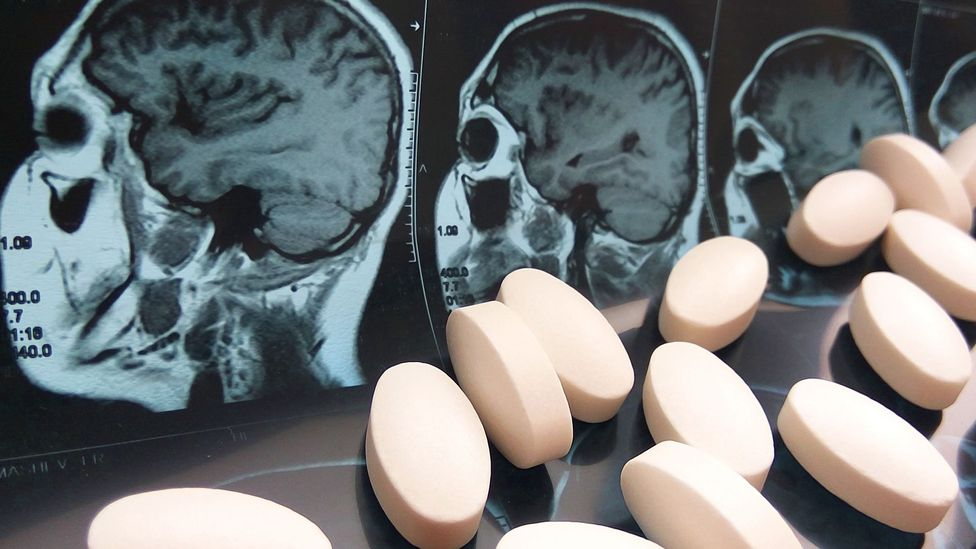Pills and brain x-ray (Credit: Getty Images)
