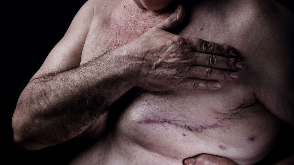 A man with a scar after breast cancer surgery (Credit: Getty Images)