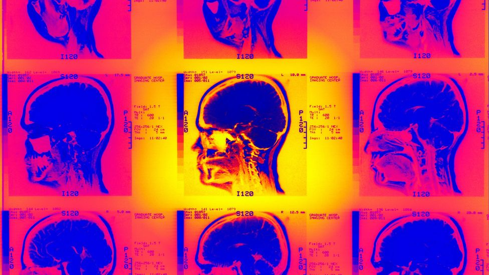 Blows to head can lead neural tissue to swell and reduce the flow of blood to the brain (Credit: Alamy)
