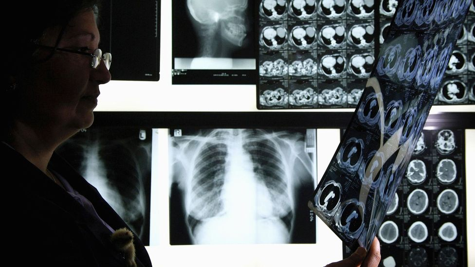 'Swarm intelligence' can help radiologists reduce errors by a third when diagnosing pneumonia (Credit: Getty Images)