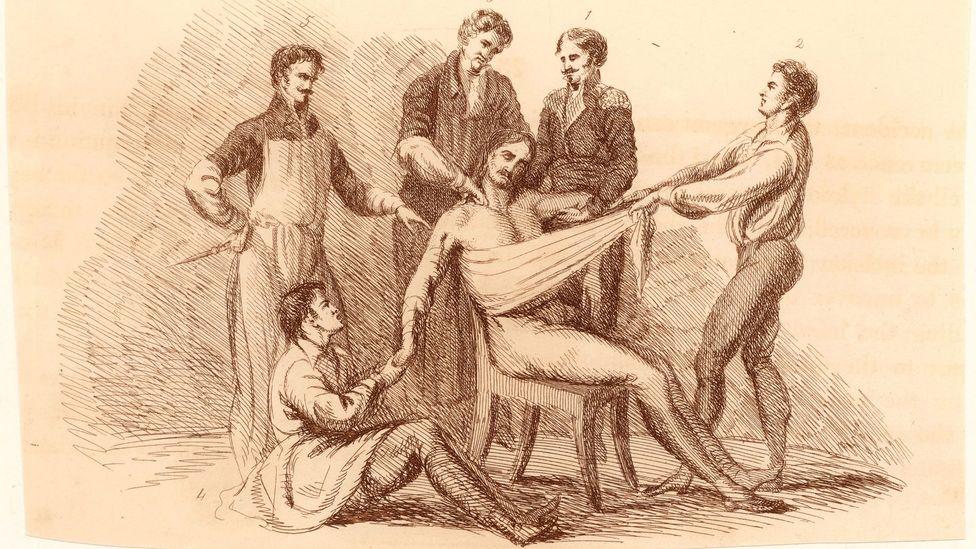 Hak atas foto Getty Images Tanpa anestesi, pasien harus ditahan karena mereka mengalami rasa sakit yang menyiksa.