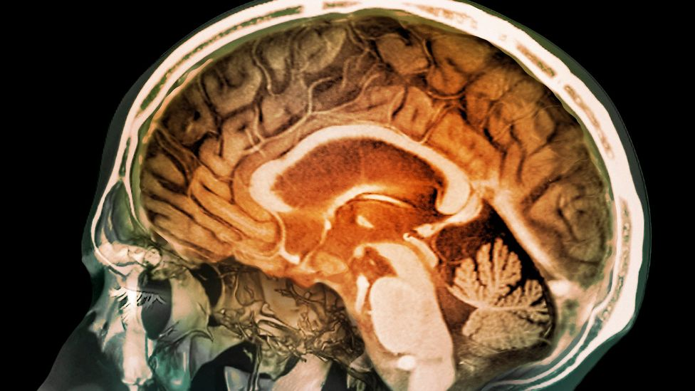 Our brains are delicate organs that are kept safe by our hard skulls, but sometimes they need some extra protection (Credit: Science Media Library)