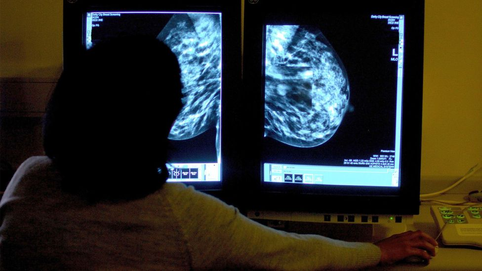 Due to the way cancer screening is offered, transgender men will often miss out on vital tests that can detect the signs of breast cancer (Credit: Press Association)