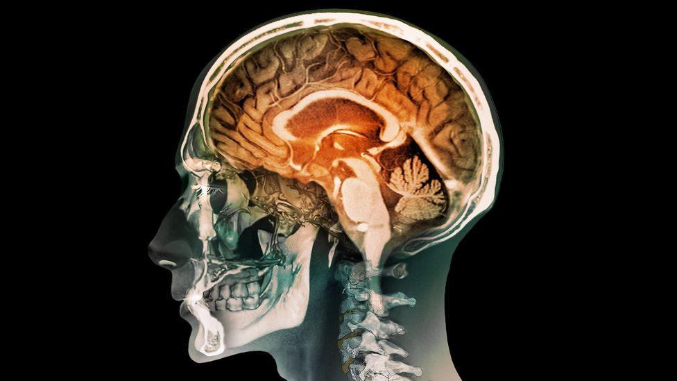 The corpus callosum – the orange arch beneath the folded cerebrum – facilitates communication between the hemispheres of the brain (Credit: Science Photo Library)