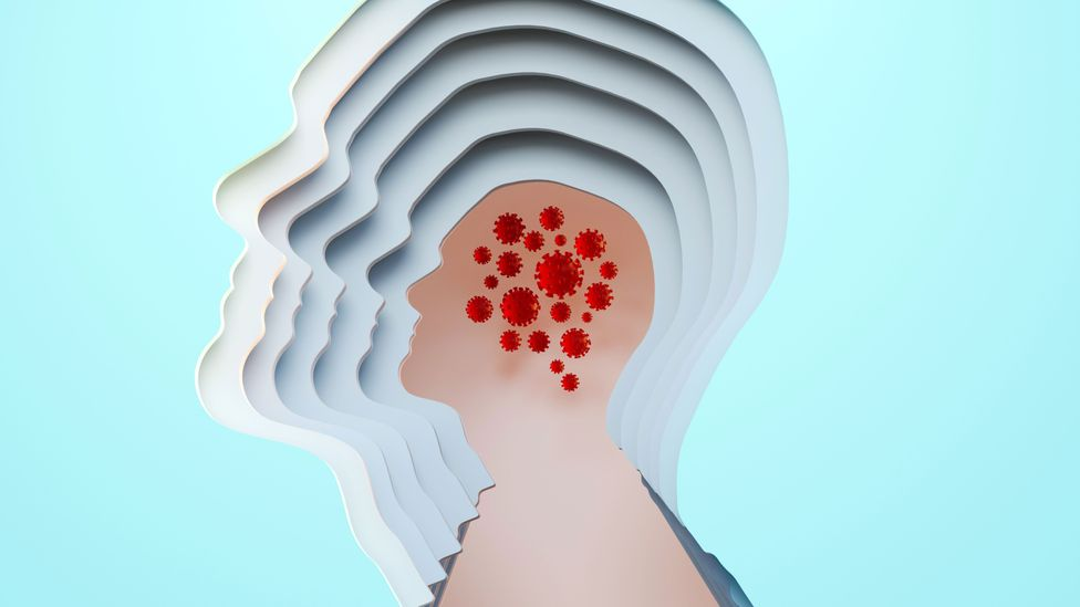 Is Alzheimer's triggered by infection? (Credit: Getty Images)