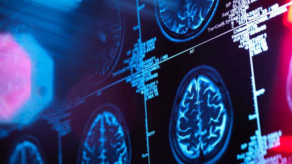 Amyloid beta can act as a kind of microbicide that fights pathogens in the brain (Credit: Getty Images)